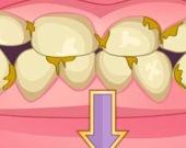 Лечим плохие зубы